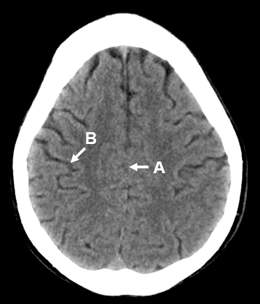 Basic Anatomy Of Ct Brain Hku E Learning Platform In Clinical