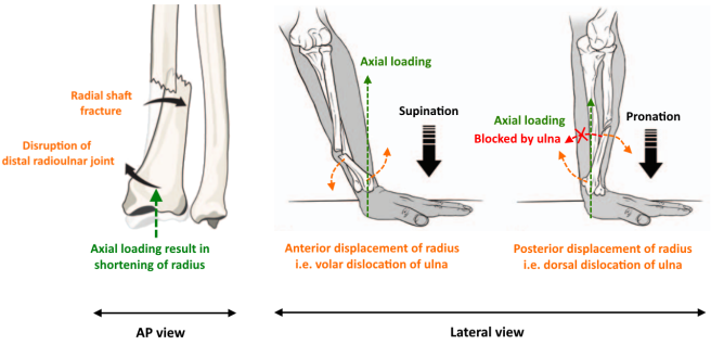 Galeazzi fracture – Brian's Radiology Learning Diary